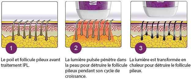 fonctionnement lumiere pulsee
